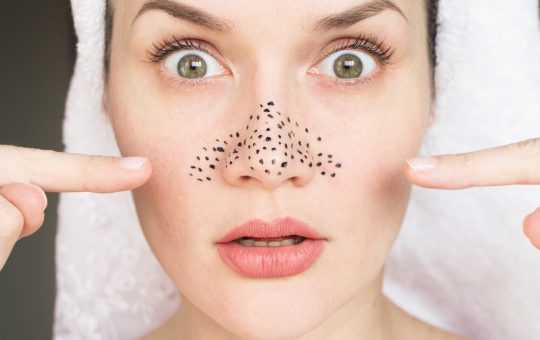 Home-Remedies-to-Remove-Blackheads
